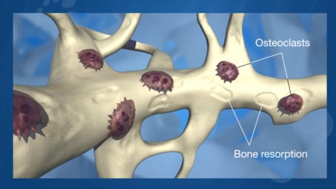 survivorship care plan bone health