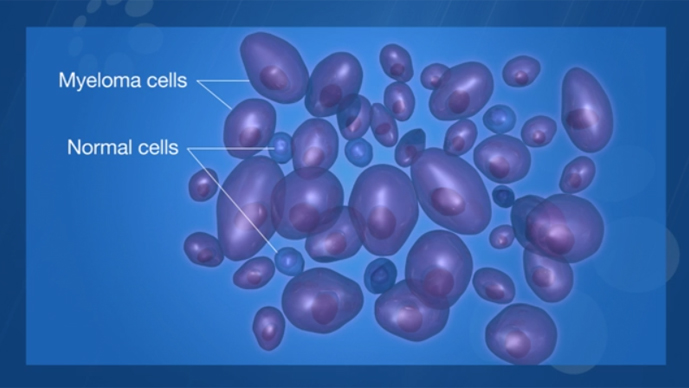 multiple myeloma overview