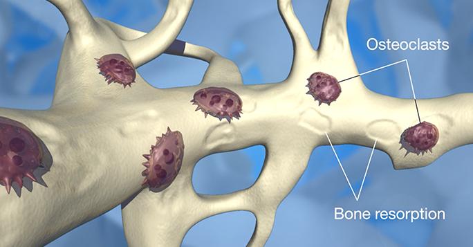 Survivorship Care Plan: Bone Health