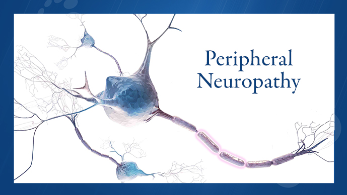 recognizing and evaluating peripheral neuropathy in patients with multiple myeloma